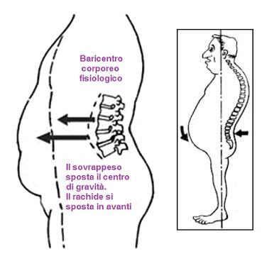 Il tumore tra un collo e una spalla non fa male