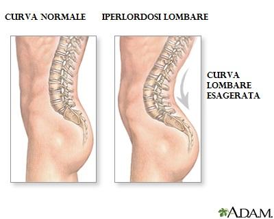 osteopatia iperlordosi