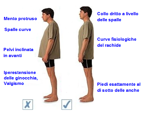 Molto Obesità e Mal di Schiena – Osteopata.it – Osteopata a Roma Nord  QB27